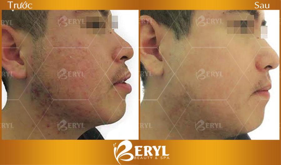 Hình ảnh trước và sau khi điều trị mụn thâm hiệu quả tại Beryl Beauty & Spa TPHCM