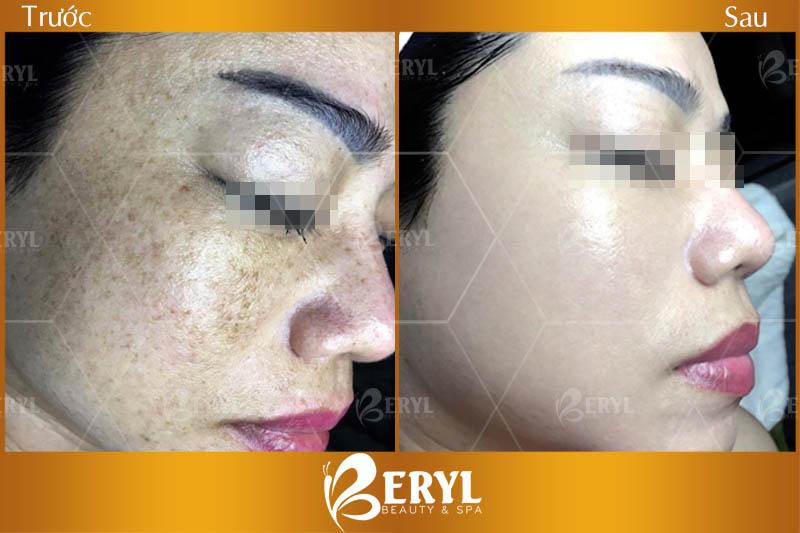 Hình ảnh trước và sau khi trị nám tàn nhang sau sinh tại Beryl Beauty & Spa TPHCM