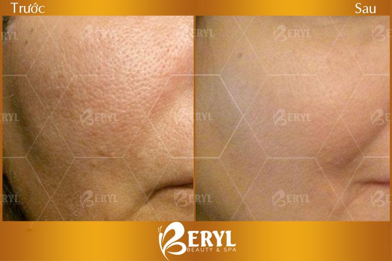 Hình ảnh trước và sau khi lăn kim tế bào gốc trị sẹo, lỗ chân lông to tại Beryl Beauty & Spa