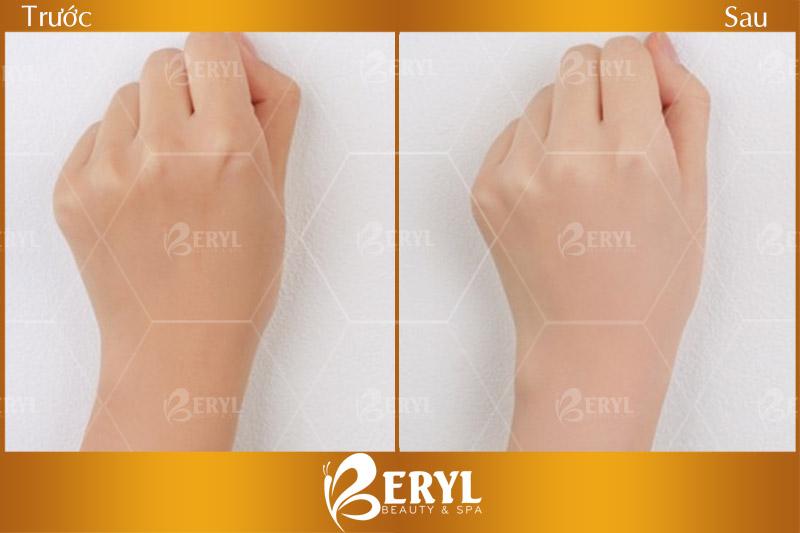 Hình ảnh trước và sau khi đến Beryl Beauty & Spa tắm trắng toàn thân