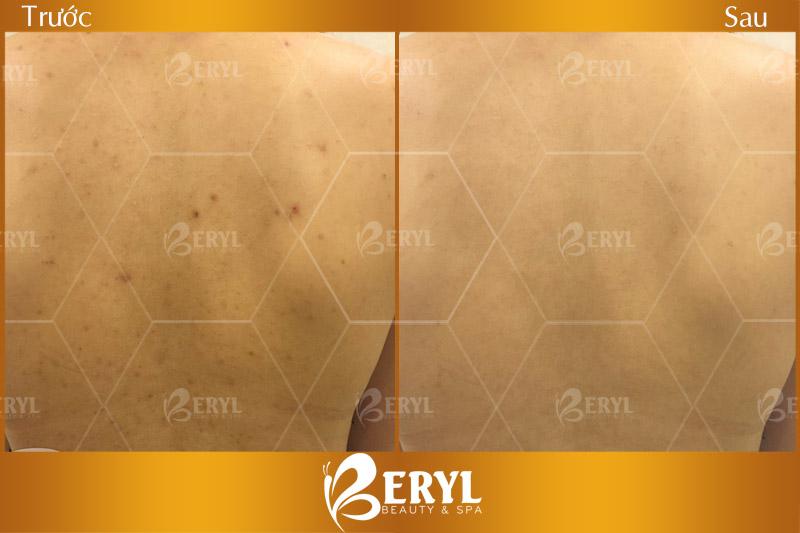 Hình ảnh trước và sau khi điều trị mụn ở lưng cho nam giới tại Beryl Beauty & Spa