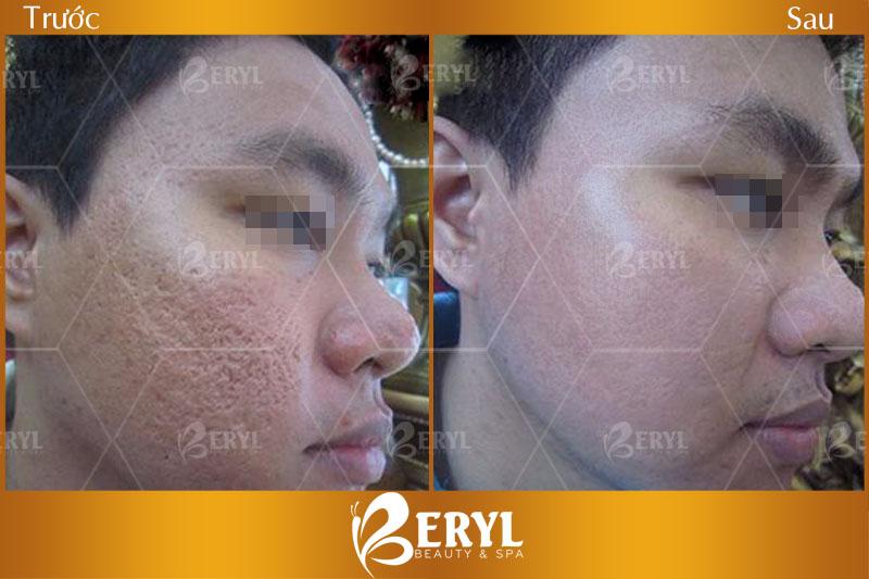 Hình ảnh trước và sau khi lăn kim trị sẹo trên mặt tại Beryl Beauty & Spa